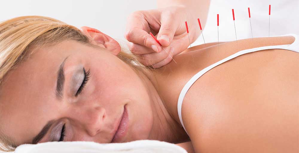 A woman using acupuncture in Fort Myers, FL